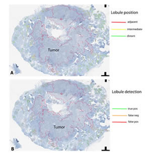 Prerequisites to capture the spatial aspects of the breast cancer -associated inflammatory resonse in the tumor microenvironment: Object-oriented image analysis to detect mammary gland lobules adjacent to hereditary breast cancer.  A - classification of lobules according to their distance to the tumor.  B - An important tool for for statistical assessment of sensitivity and robustness of automated pattern recognition, in this example by manual annotation of true positive, false positive, and false negative results. (Image by Anne Grote et al., Published: 19 December 2014 © 2014 Grote et al.; licensee BioMed Central Ltd.)